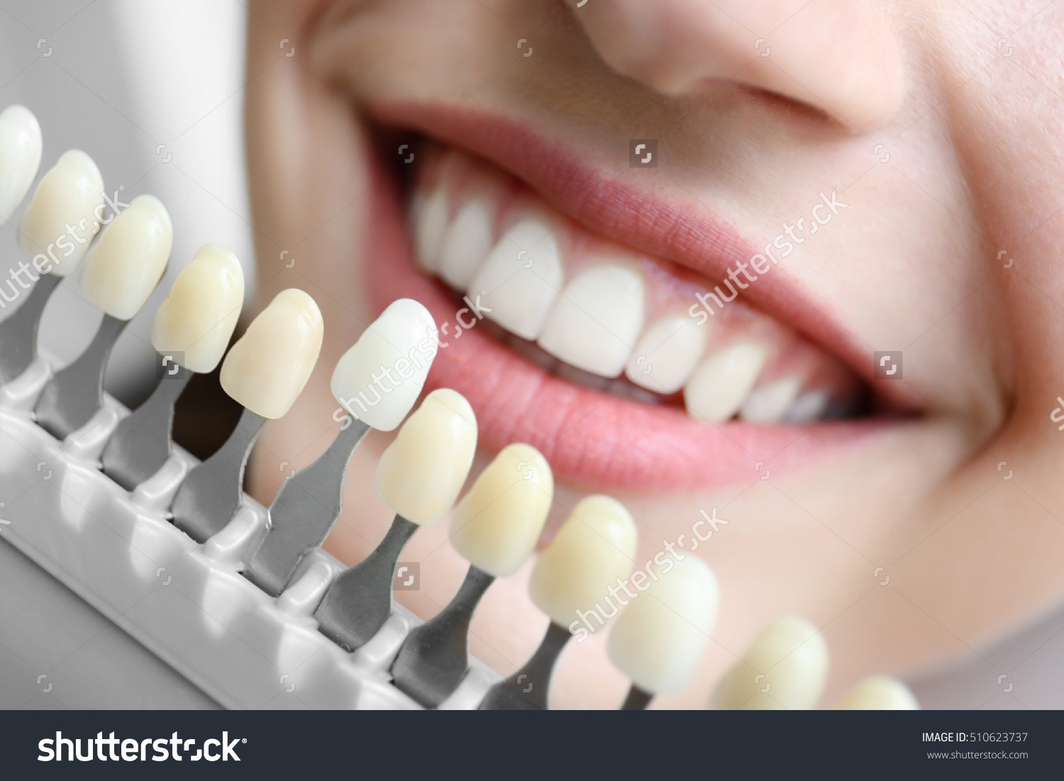 Stock photo young woman choosing color of teeth at dentist closeup 510623737 andreas garleff - Photo of houses ...